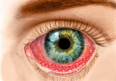 Chlamidial Conjunctivitis